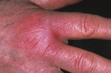 Red inflammed hand